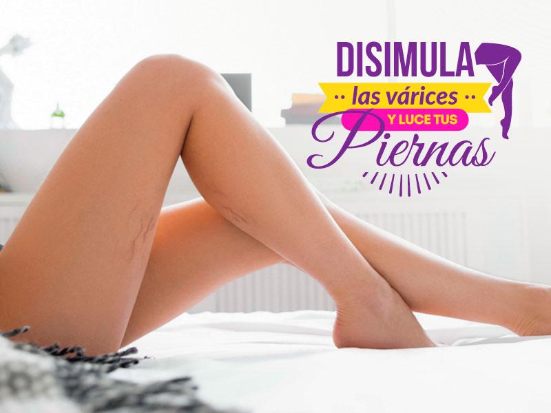 Disimula las várices y luce tus piernas